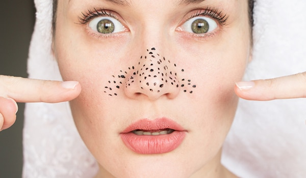 Most Effective Homemade Blackhead Removal Masks