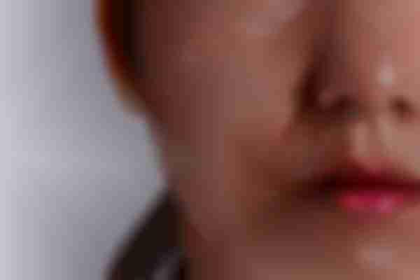 What causes melasma?