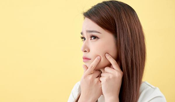 How to pick a moisturiser for acne prone skin